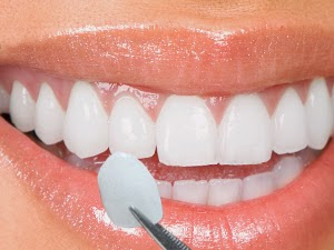 lentes-de-contato-dental3 - DIFERENÇA ENTRE PORCELANA E RESINA...