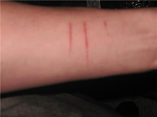 Why Teenagers Cut And How To Help >> Maa World When Depression Turns To Cutting