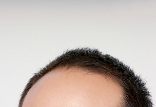 Hair transplant crown in Dubai