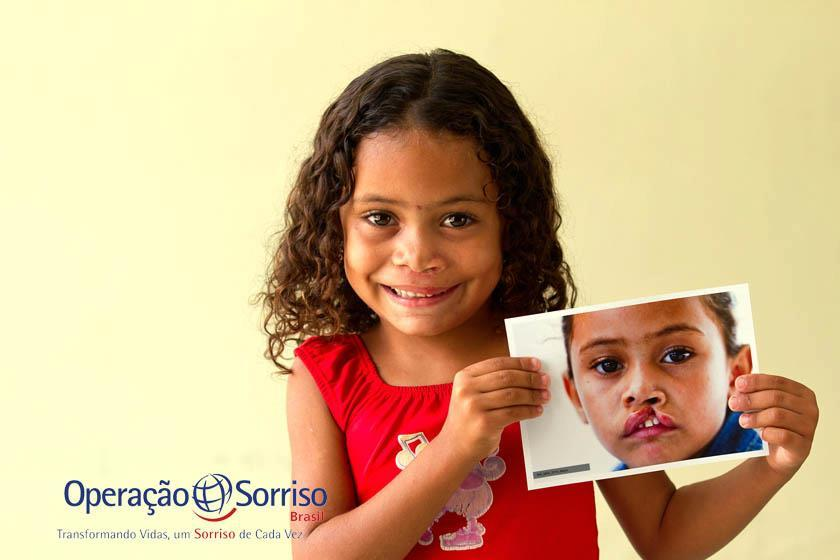 Operação Sorriso Brasil