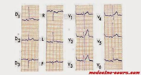 ECG péricardite aigue