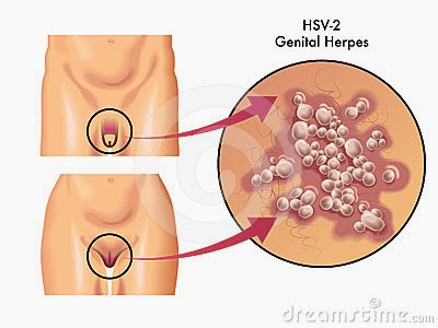 Pictures of HPV Genital Warts, Herpes and Cancer See more about Cancer, Pictures Of and Pictures 1