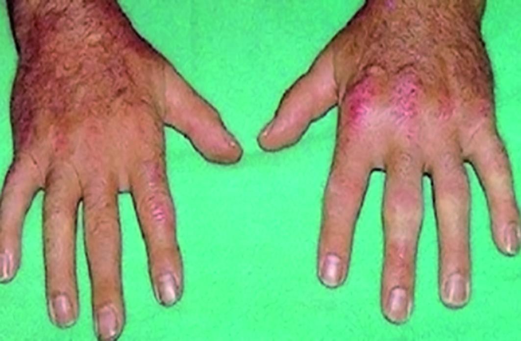 Artritis Psoriasica Fotos