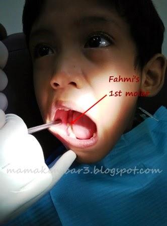 gigi kekal first molar