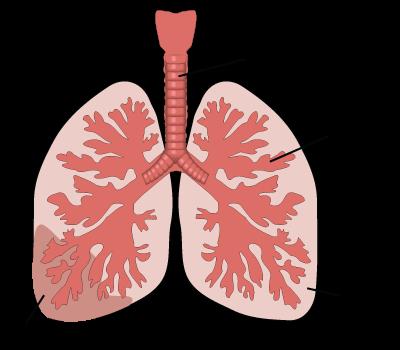 NursingCarePlanIneffectiveAirwayClearancerelatedtoPneumonia
