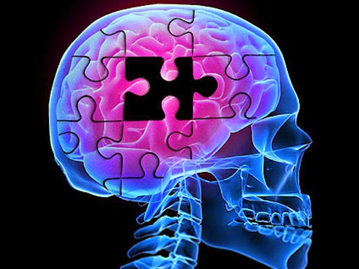 Tratamento de Alzheimer no SUS