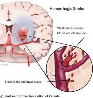 Stroke Mengenal dan Mencegah Stroke