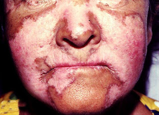 victims of lupus disease