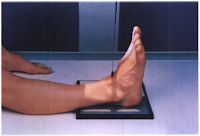 ankle xray