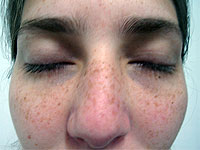 O pigmentary nota em uma cara antes e depois