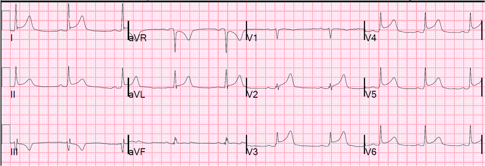 Dr. Smith's ECG Blog: Pericarditis, or Anterior STEMI? The QRS ...