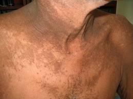 Papilomatosis confluente y reticulada