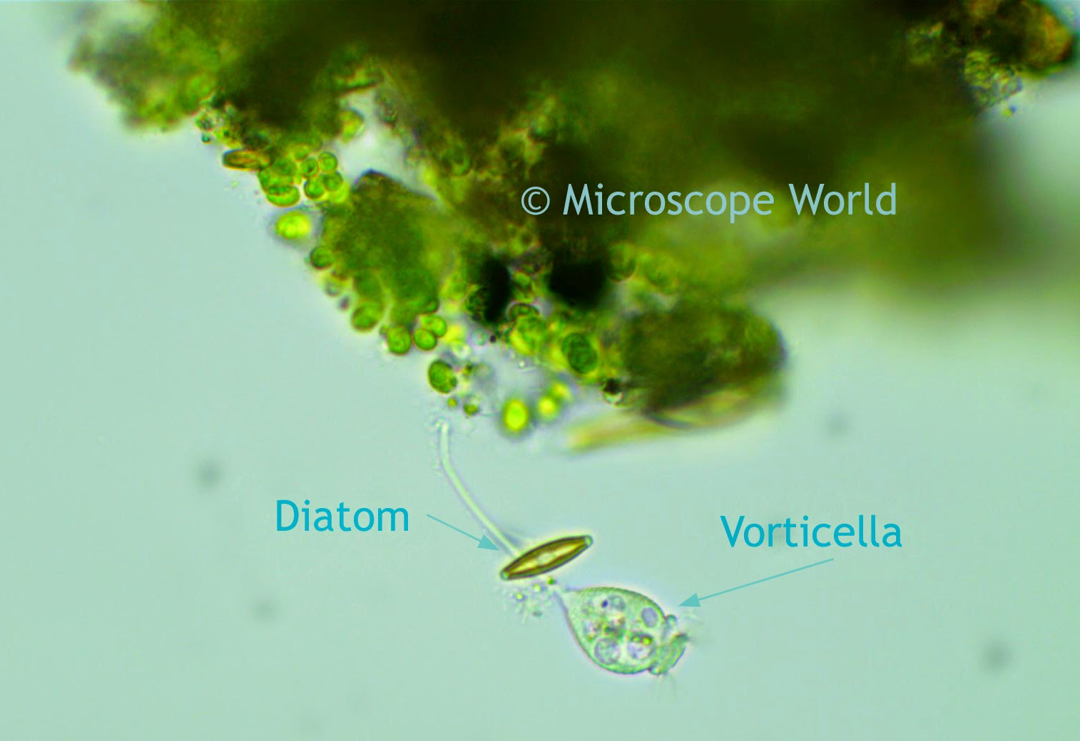 Diatom and Vorticella under the microscope at 400x.