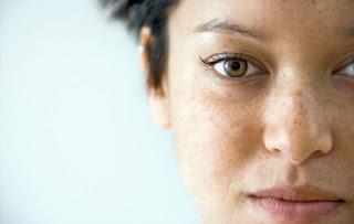 Tips Mudah Menghilangkan Bintik Bekas Jerawat yang Sudah Lama