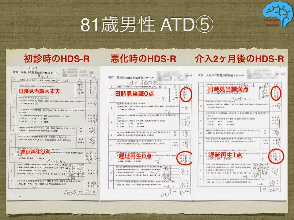 81歳男性 アルツハイマー 長谷川式テストの変化
