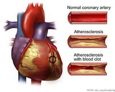 Cara Mencegah Penyakit Jantung Sebelum Terlambat