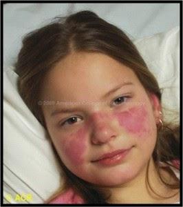 Cara Tradisional Sembuhkan Lupus