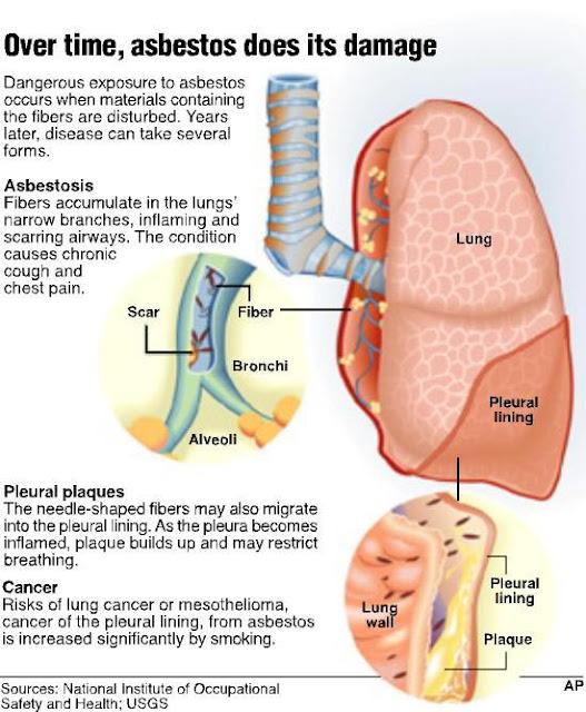 Diagram Of Breathing In Asbestos Fibers : Mesothelioma info asbestosis cancer asbestos