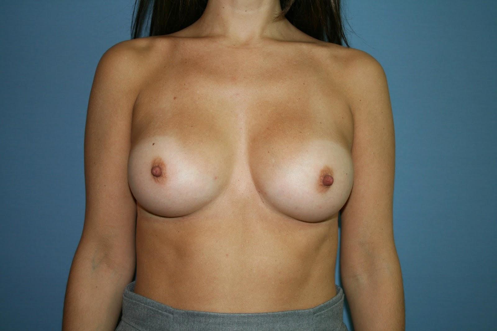 aumento_pecho_madrid_protesis_anatomica