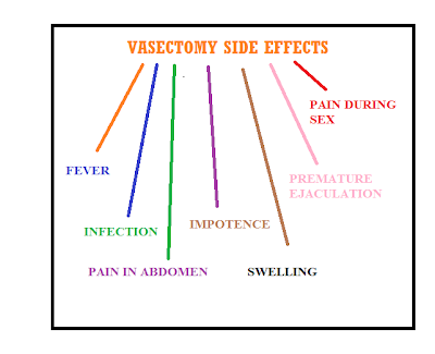 vasectomy and its  infographics picture about how its side effects will affect men sexual life