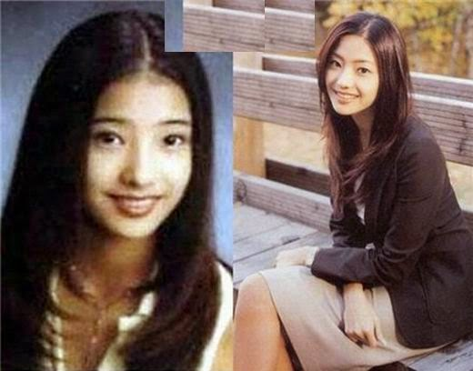 han chae young before and after plastic surgery