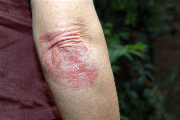6 ways psoriasis affects your body