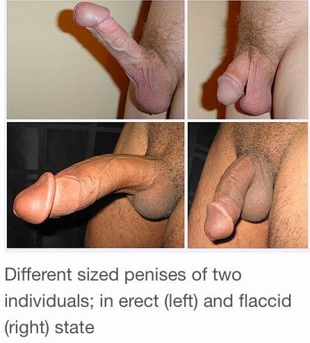 органа фото мужского полового размеры