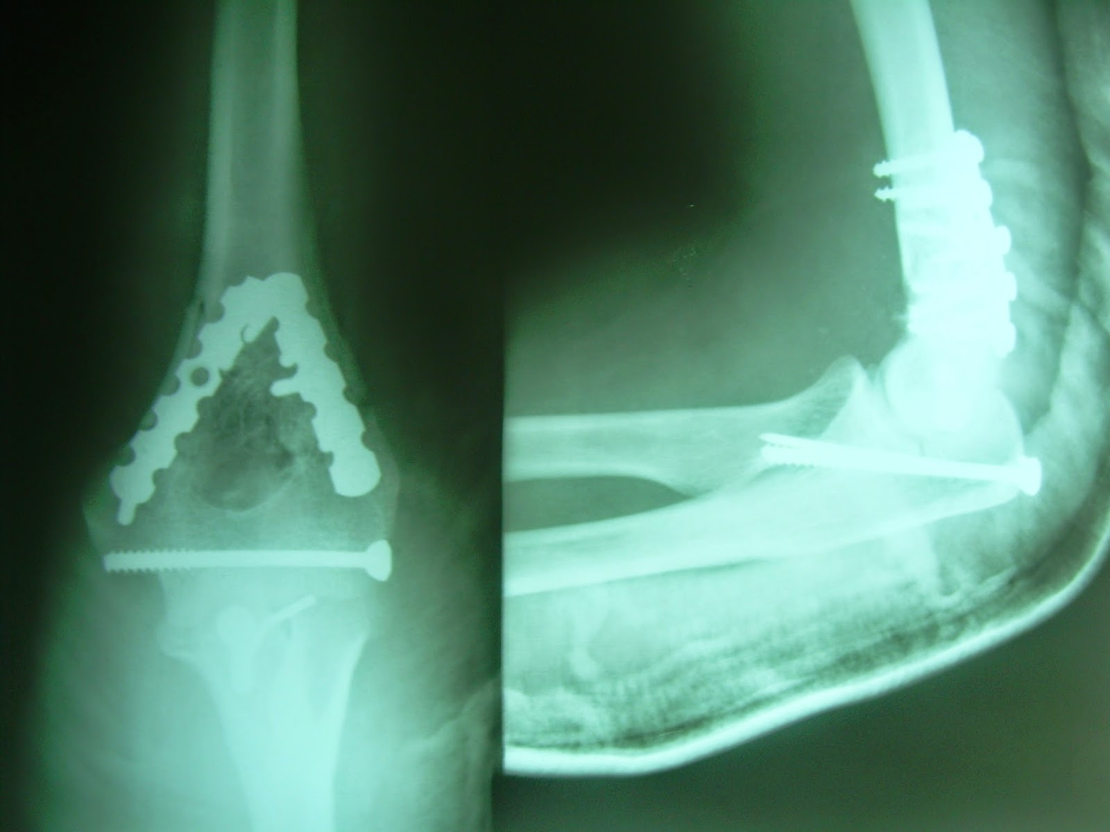 dhir\'s page: Orthopaedc Surgeries:- Fractures of humerus condyles: