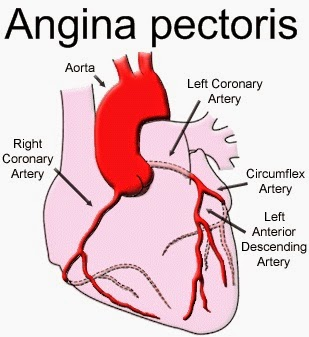 How do symptoms of angina differ from heart attack symptoms?