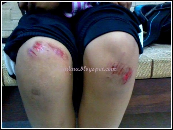 lutut berdarah