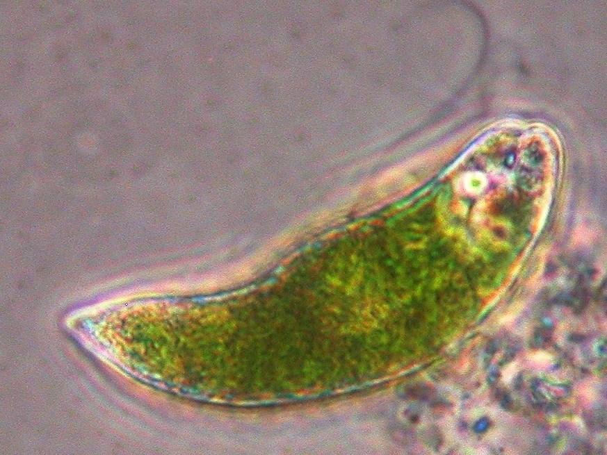 amoeba kingdom protista phylum tubulinea order tubulinida family    Kingdom Protista