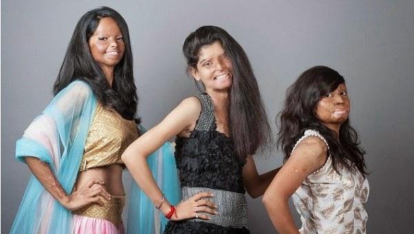 Ám ảnh khuôn mặt biến dạng của những người mẫu bị tạt axit