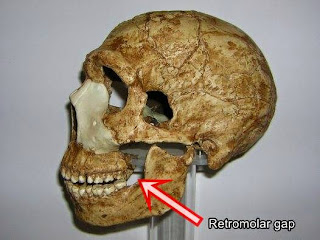 retromolar gap in Neandertal skull