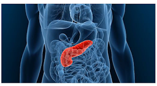 Particles In Blood Useful For Early Diagnosis Of Pancreatic Cancer