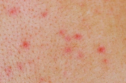 """Herpes Signs and Symptoms,"" American Sexual Health ..."