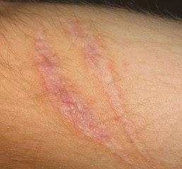 bekas luka