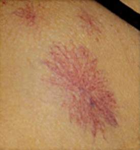 image of spider nevus