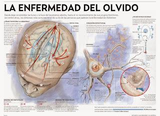 Anche La Spagna Dedica Molte Ricerche Alla Cura dell'Alzheimer