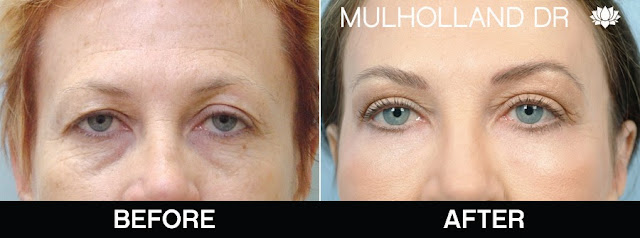 Before and after blepharoplasty in Toronto