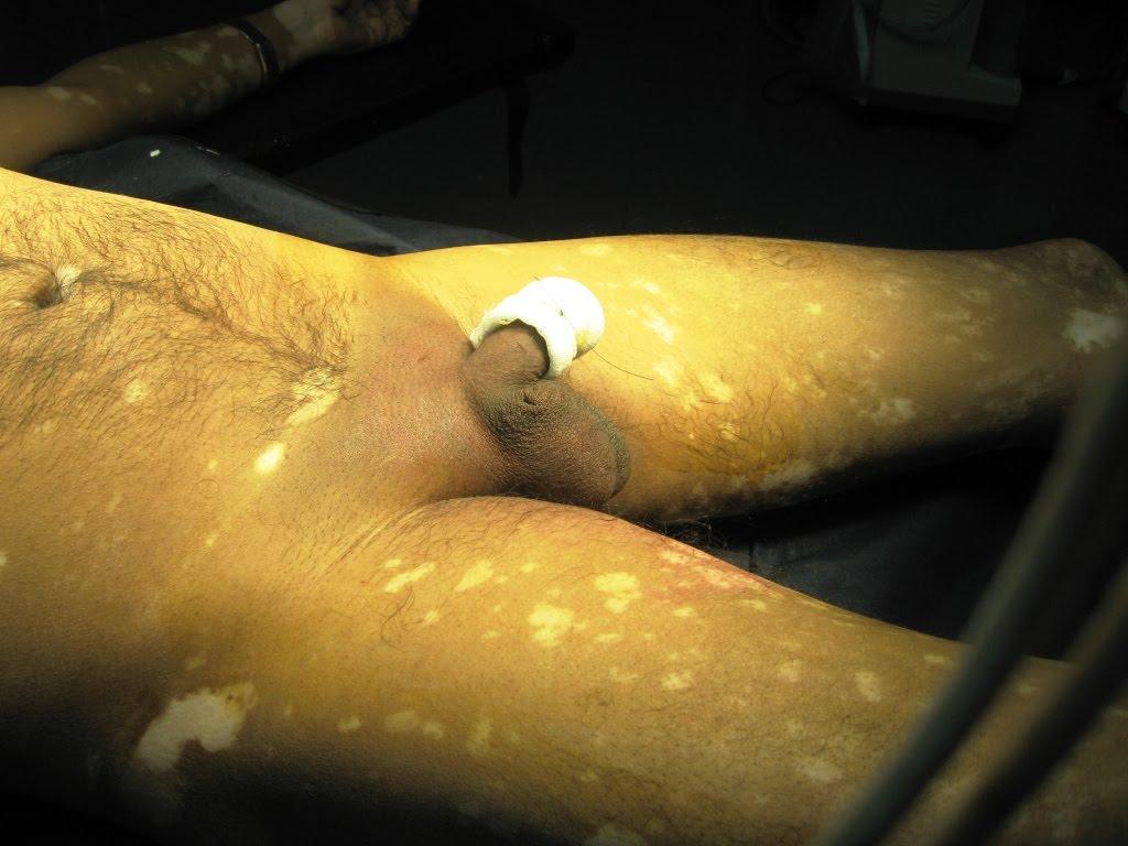 Adult circumcision in kansas