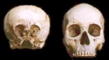 These Ancient Elongated Skulls Are Not Human
