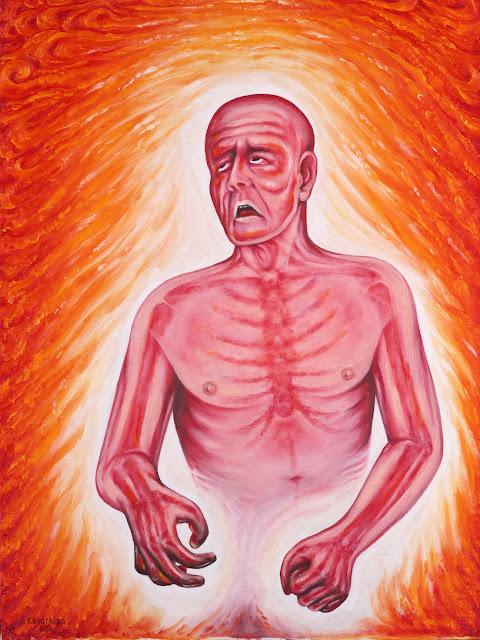 Jack Kevorkian: Paralysis
