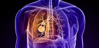 Saiba mais sobre a Pneumonia Adquirida na Comunidade
