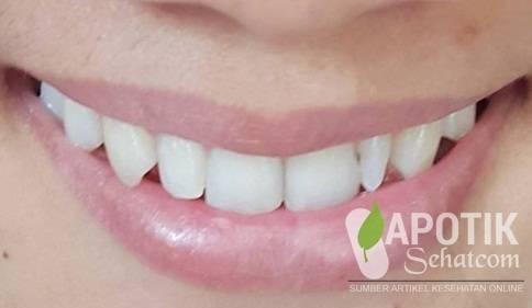 Obat Penghilang Karang Gigi di Apotik