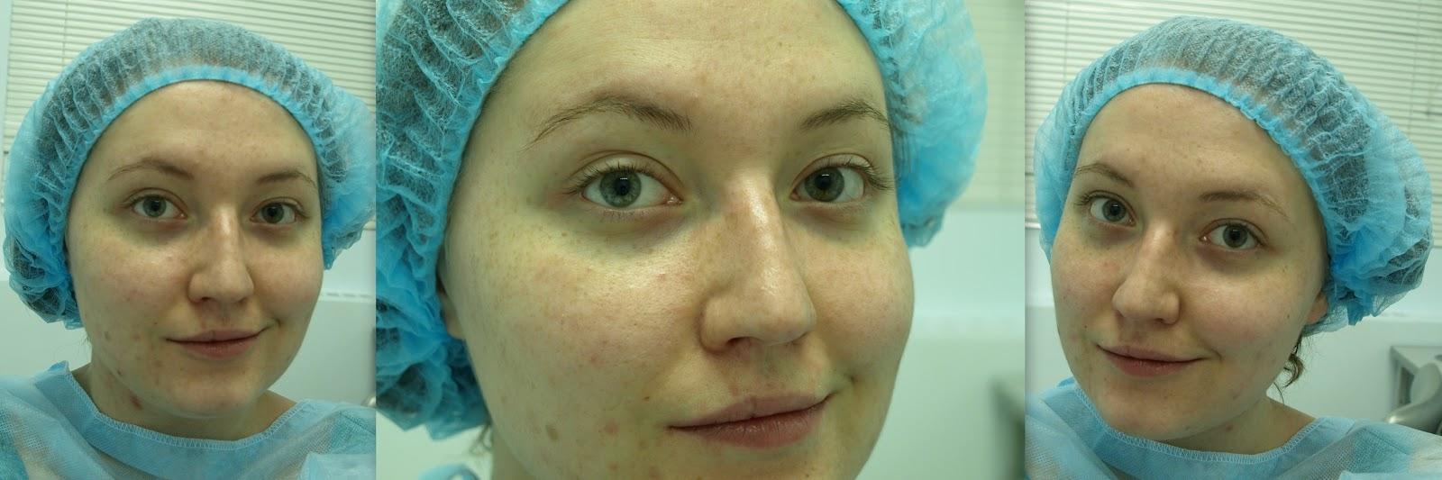 Как сделать маску пленку для лица фото 884