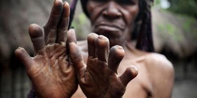 Tradisi Unik Potong Jari Tangan Ala Suku Dani Papua Indonesia