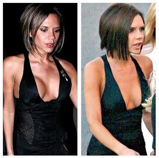 Victoria Beckham Breast Reduction