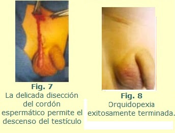 TESTICULOS NO DESCENDIDOS y CIRUGIA PEDIATRICA
