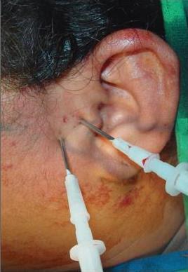 Common joint space in facial surgery encanta