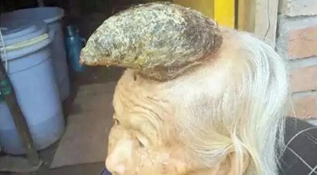 Nenek Liang Xiuzhen memiliki sebuah tanduk